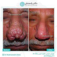 درمان ناهنجاریهای پوست بینی